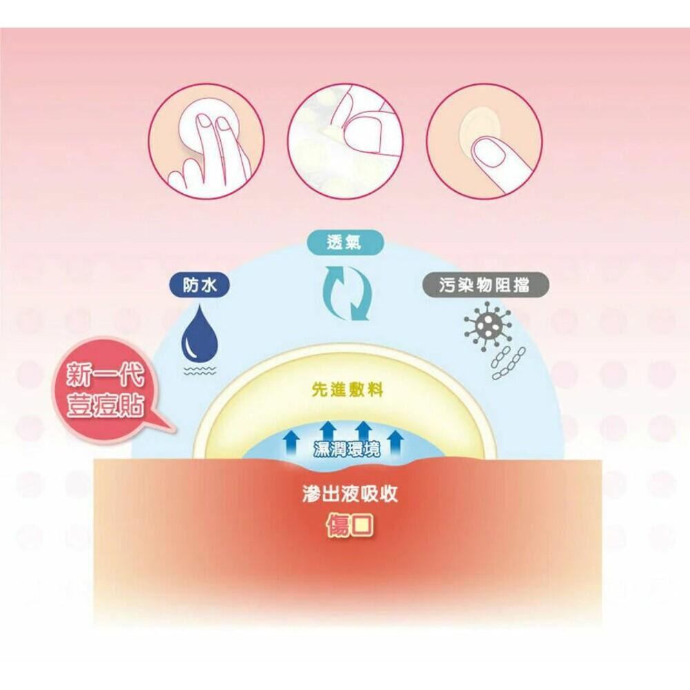 3M™ Nexcare™ 荳痘貼(滅菌) 超服貼18顆入